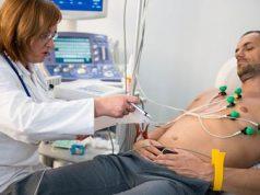 alat rekam jantung EKG
